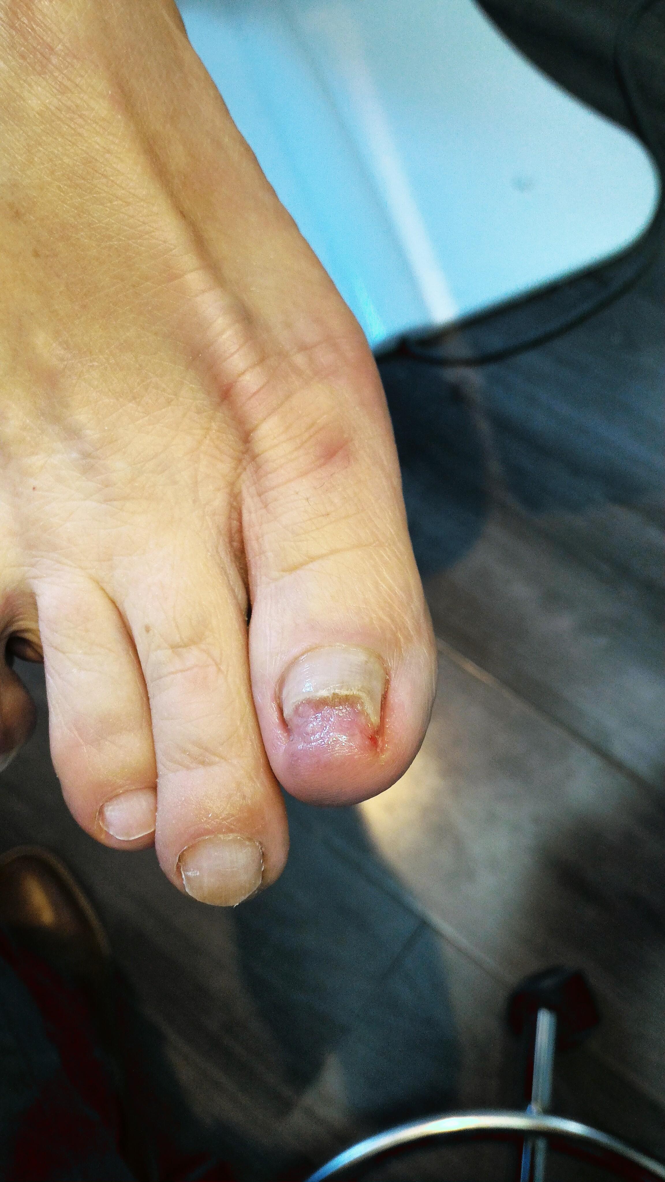 Onychoptose partielle de l'ongle suite à un traumatisme direct.